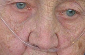 A close up of a sad older woman with an oxygen tube in her nose